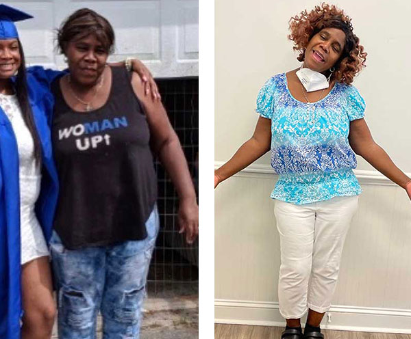 Before and After Photos of Medical Weight Loss Patients